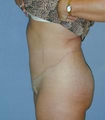 Tummy Tuck After Photo by Daniel Medalie, MD; Beachwood, OH - Case 3597