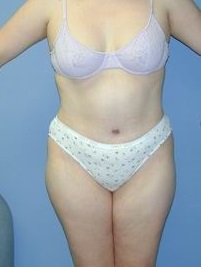 Tummy Tuck After Photo by Daniel Medalie, MD; Beachwood, OH - Case 3617