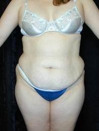 Tummy Tuck Before Photo by Daniel Medalie, MD; Beachwood, OH - Case 3617