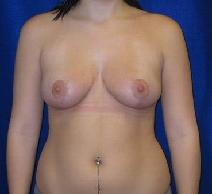 Breast Reduction After Photo by Daniel Medalie, MD; Beachwood, OH - Case 3794