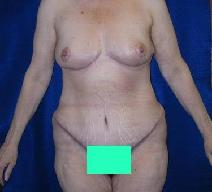 Body Contouring After Photo by Daniel Medalie, MD; Beachwood, OH - Case 4855