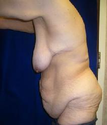 Body Contouring Before Photo by Daniel Medalie, MD; Beachwood, OH - Case 4855