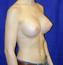 Breast Augmentation After Photo by Daniel Medalie, MD; Beachwood, OH - Case 4887
