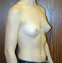 Breast Augmentation Before Photo by Daniel Medalie, MD; Beachwood, OH - Case 4887