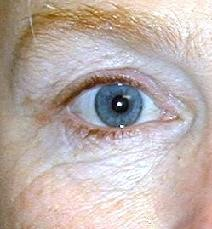 Eyelid Surgery Before Photo by Daniel Medalie, MD; Beachwood, OH - Case 4899