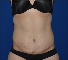Tummy Tuck After Photo by Karol Gutowski, MD, FACS; Glenview, IL - Case 39113