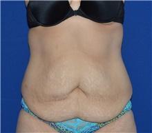 Tummy Tuck Before Photo by Karol Gutowski, MD, FACS; Glenview, IL - Case 39113