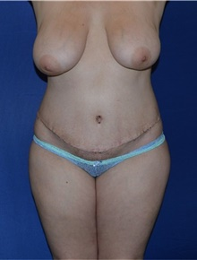 Tummy Tuck After Photo by Karol Gutowski, MD, FACS; Glenview, IL - Case 39116