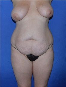 Tummy Tuck Before Photo by Karol Gutowski, MD, FACS; Glenview, IL - Case 39116