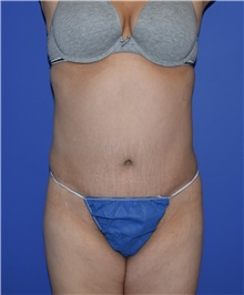 Tummy Tuck After Photo by Karol Gutowski, MD, FACS; Glenview, IL - Case 39128