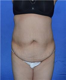Tummy Tuck Before Photo by Karol Gutowski, MD, FACS; Glenview, IL - Case 39128