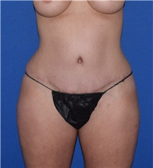Tummy Tuck After Photo by Karol Gutowski, MD, FACS; Glenview, IL - Case 39132