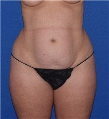 Tummy Tuck Before Photo by Karol Gutowski, MD, FACS; Glenview, IL - Case 39132