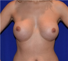 Breast Augmentation After Photo by Karol Gutowski, MD, FACS; Glenview, IL - Case 39148