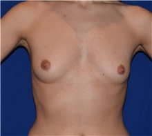 Breast Augmentation Before Photo by Karol Gutowski, MD, FACS; Glenview, IL - Case 39148