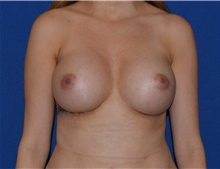 Breast Augmentation After Photo by Karol Gutowski, MD, FACS; Glenview, IL - Case 39149