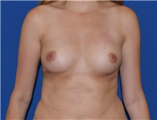 Breast Augmentation Before Photo by Karol Gutowski, MD, FACS; Glenview, IL - Case 39149