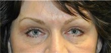 Eyelid Surgery After Photo by Karol Gutowski, MD, FACS; Glenview, IL - Case 39150