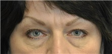 Eyelid Surgery Before Photo by Karol Gutowski, MD, FACS; Glenview, IL - Case 39150