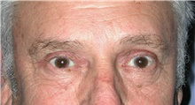 Eyelid Surgery After Photo by Karol Gutowski, MD, FACS; Glenview, IL - Case 39151