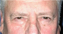 Eyelid Surgery Before Photo by Karol Gutowski, MD, FACS; Glenview, IL - Case 39151