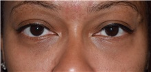 Eyelid Surgery After Photo by Karol Gutowski, MD, FACS; Glenview, IL - Case 39155