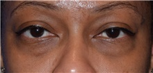 Eyelid Surgery Before Photo by Karol Gutowski, MD, FACS; Glenview, IL - Case 39155