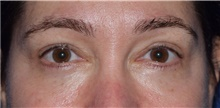 Eyelid Surgery After Photo by Karol Gutowski, MD, FACS; Glenview, IL - Case 39156