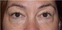 Eyelid Surgery Before Photo by Karol Gutowski, MD, FACS; Glenview, IL - Case 39156