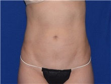 Liposuction After Photo by Karol Gutowski, MD, FACS; Glenview, IL - Case 39163