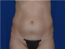 Liposuction Before Photo by Karol Gutowski, MD, FACS; Glenview, IL - Case 39163