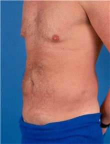 Liposuction Before And After Photos American Society Of Plastic Surgeons