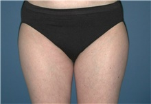 Liposuction After Photo by Karol Gutowski, MD, FACS; Glenview, IL - Case 39225