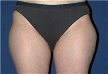 Liposuction Before Photo by Karol Gutowski, MD, FACS; Glenview, IL - Case 39225