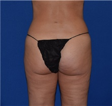 Liposuction After Photo by Karol Gutowski, MD, FACS; Glenview, IL - Case 39227