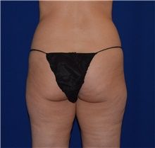Liposuction Before Photo by Karol Gutowski, MD, FACS; Glenview, IL - Case 39227