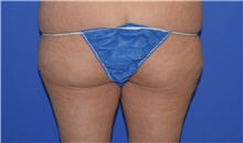Liposuction Before Photo by Karol Gutowski, MD, FACS; Glenview, IL - Case 39241