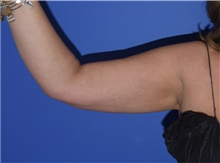 Liposuction After Photo by Karol Gutowski, MD, FACS; Glenview, IL - Case 40557