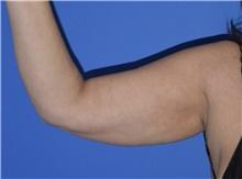 Liposuction Before Photo by Karol Gutowski, MD, FACS; Glenview, IL - Case 40557