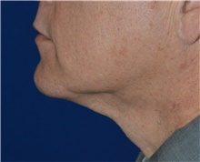 Liposuction After Photo by Karol Gutowski, MD, FACS; Glenview, IL - Case 40563