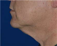 Liposuction Before Photo by Karol Gutowski, MD, FACS; Glenview, IL - Case 40563