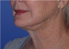 Liposuction After Photo by Karol Gutowski, MD, FACS; Glenview, IL - Case 40565