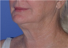 Liposuction Before Photo by Karol Gutowski, MD, FACS; Glenview, IL - Case 40565