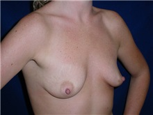 Breast Augmentation Before Photo by Thomas McNemar, MD; Tracy, CA - Case 7802