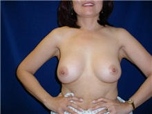 Breast Augmentation After Photo by Thomas McNemar, MD; Tracy, CA - Case 7803