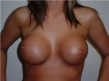 Breast Augmentation After Photo by Thomas McNemar, MD; Tracy, CA - Case 7804