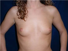 Breast Augmentation Before Photo by Thomas McNemar, MD; Tracy, CA - Case 7804