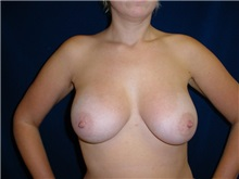 Breast Augmentation After Photo by Thomas McNemar, MD; Tracy, CA - Case 7806
