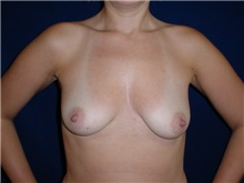 Breast Augmentation Before Photo by Thomas McNemar, MD; Tracy, CA - Case 7806