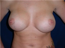 Breast Augmentation After Photo by Thomas McNemar, MD; Tracy, CA - Case 7807